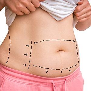 Tummy Tuck Surgery PMI