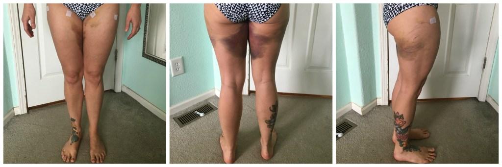 fat grafting i week thigh