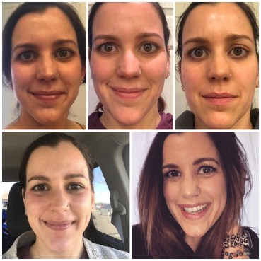 chemical peel collage