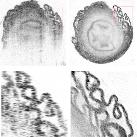 Two pairs of images of biological samples, top and bottom, where the left version is not as good as the right version