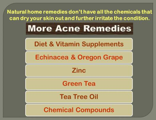 acne_natural remedies_2
