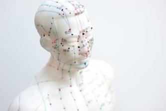 acupuncture-box