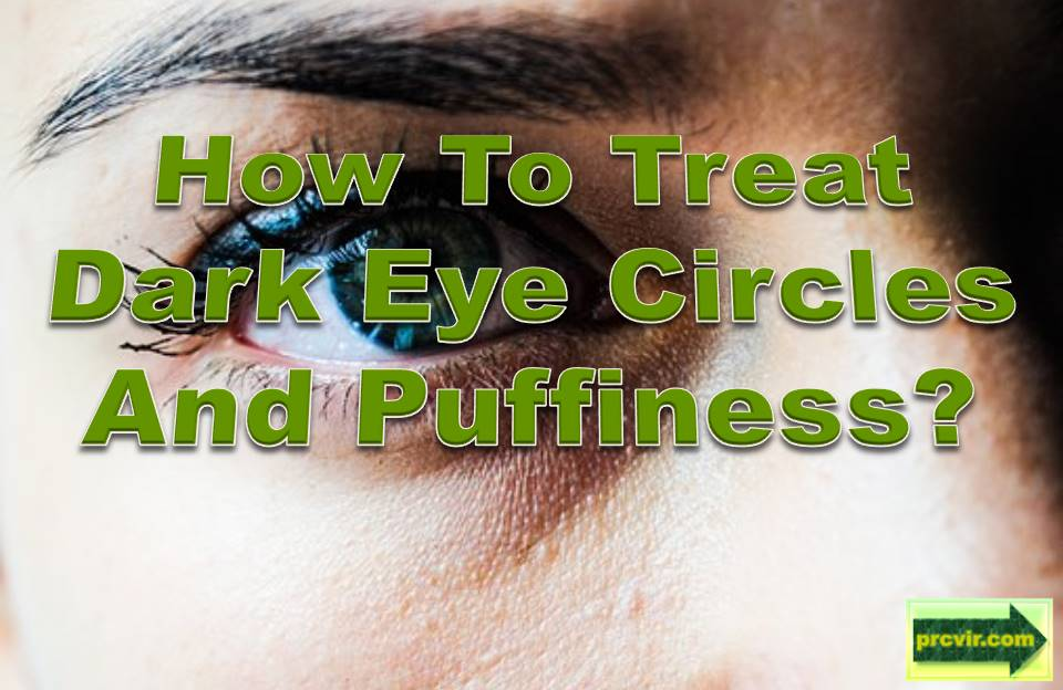 remedies for dark eyes and puffiness