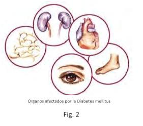 Figura 2. Órganos afectados por la Diabetes mellitus