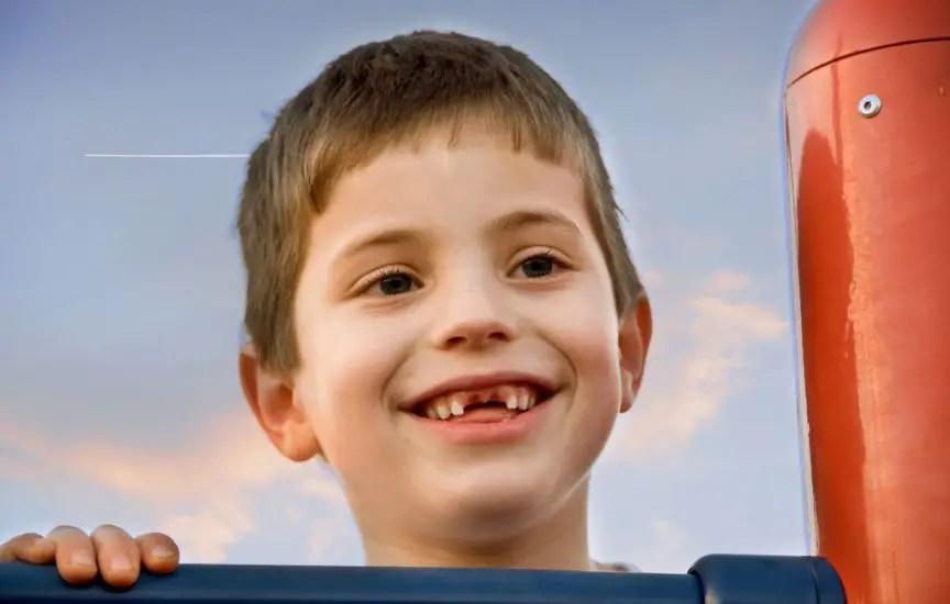 niño sin dientes