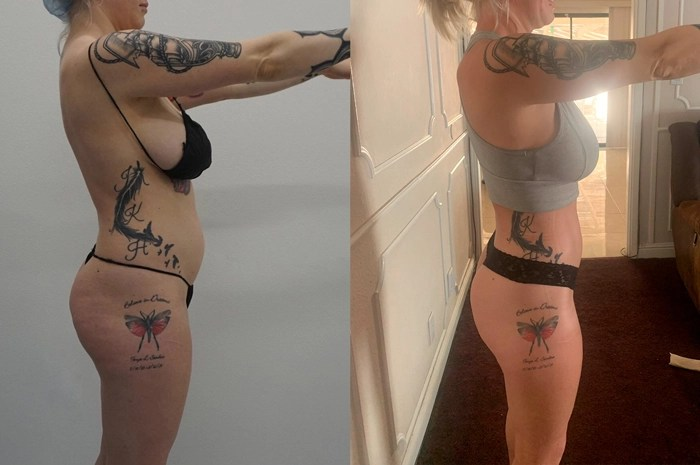 360 liposuction side view before & after