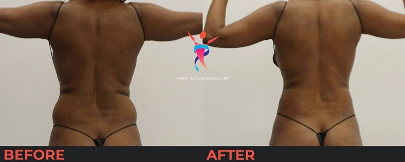 back and hip liposuction before and after