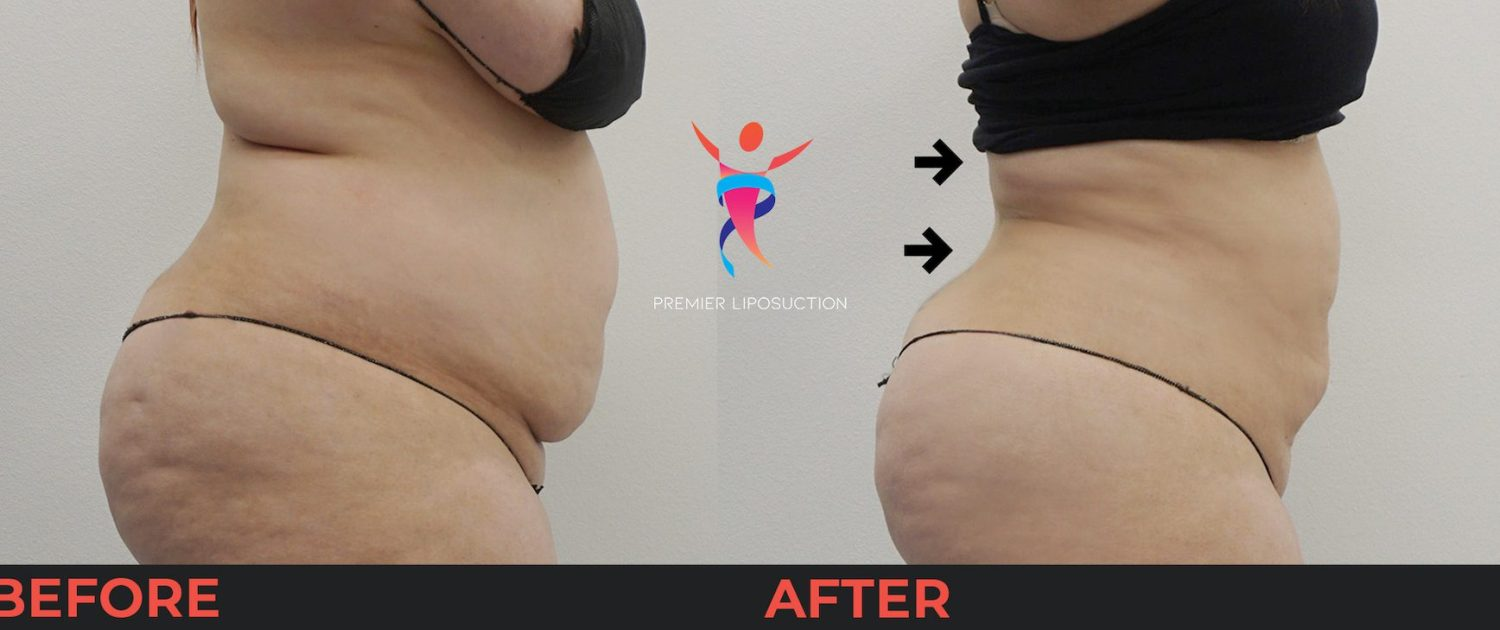 back liposuction before and after