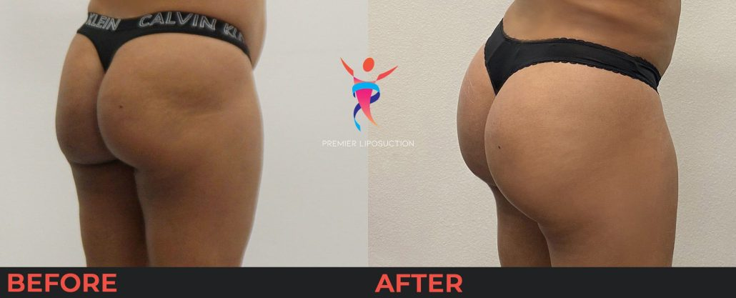 woman with butt lift before and after