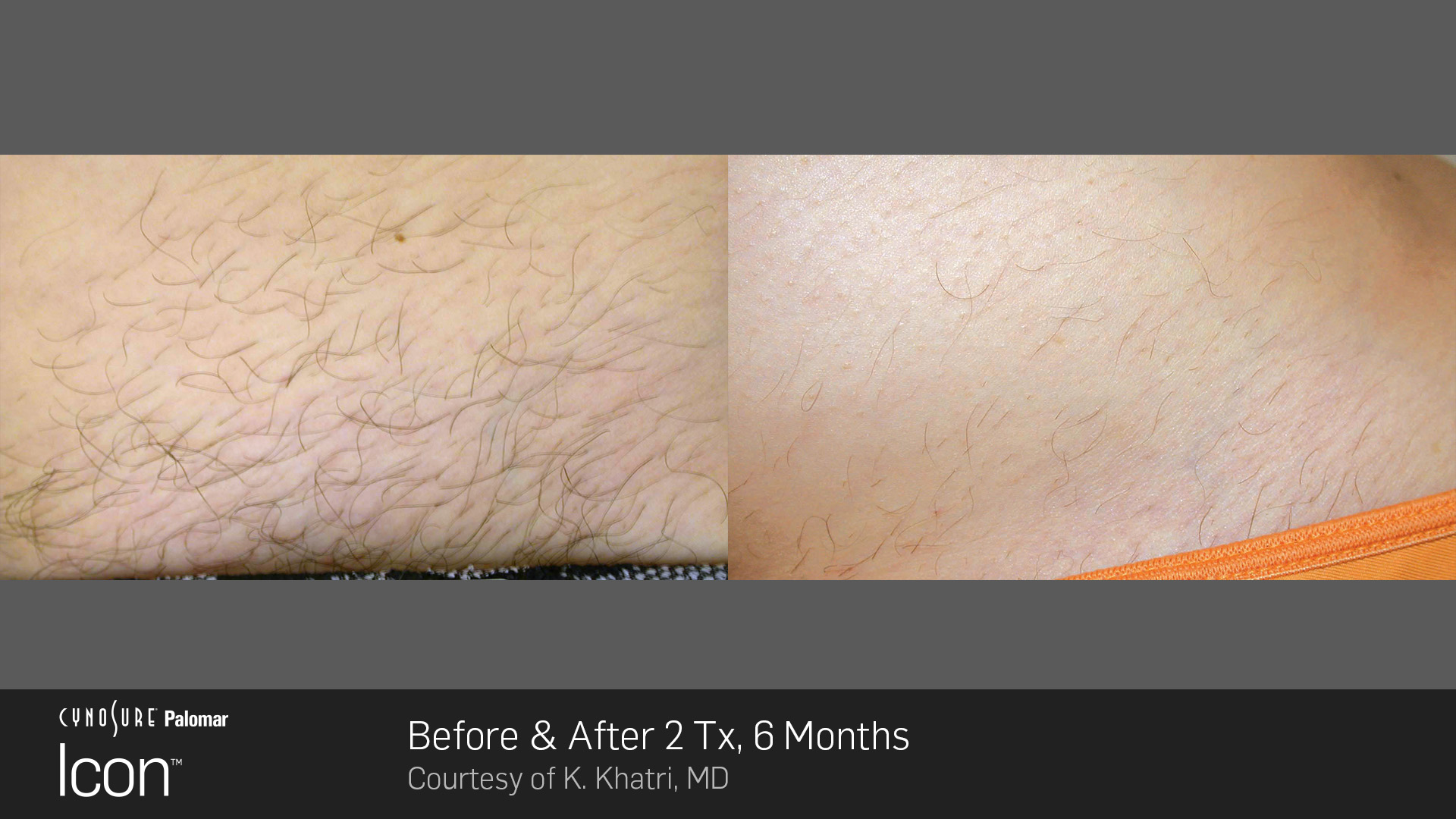 Hair-Removal-Before-&-After-Photo-7