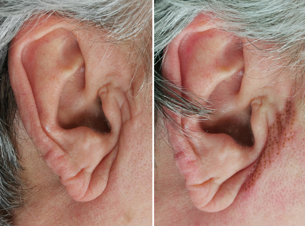 PIQ-BA-5 - ears