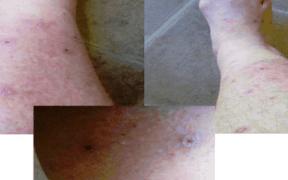 aedes mosquito california