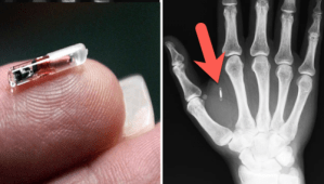 "A US Company Is Injecting RFID Microchips Into Employees… and ""They Love It"""
