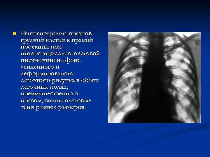 a tüdőgyulladás súlyos súlycsökkenést okoz-e)