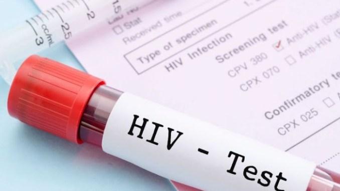 HIV blood