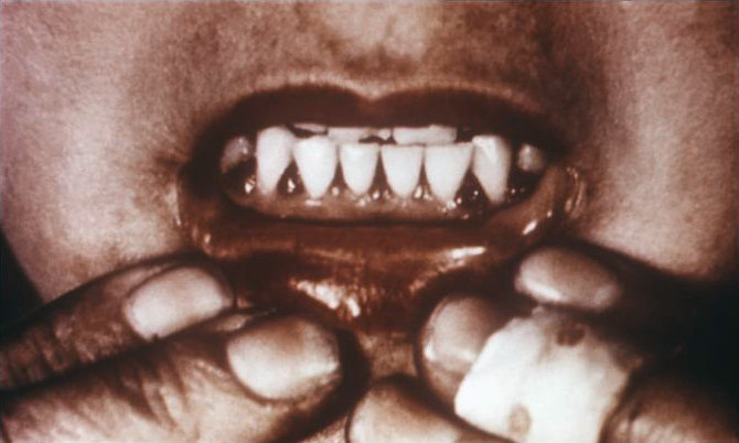 Bleeding gums in a patients mouth