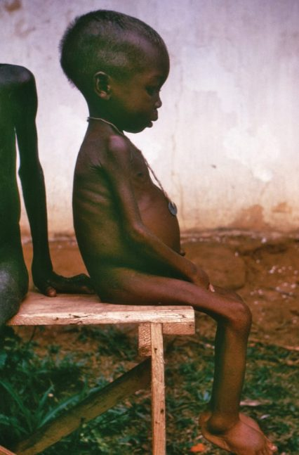 Boy with Kwashiorkor disease sitting in chair