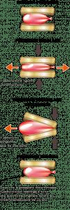 L'esempio del palloncino