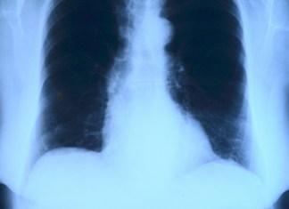 Röntgenbild