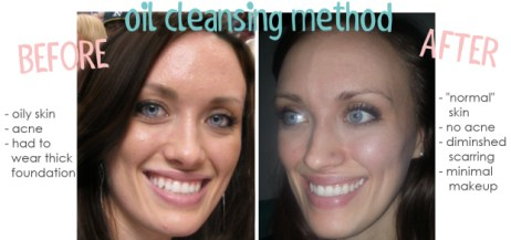 Before and After photo of oil cleansing