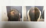 1610623 thum 1 - 増える⁉️頭皮マッサージ術❗️