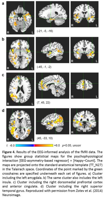 Integration of concurrent real-time fMRI and EEG data: Figure 4
