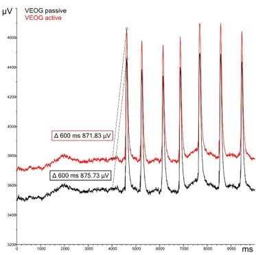 Figure 4: EOG signal recorded with active electrodes (red trace) and passive electrodes (black trace). Please note the temporal characteristics and amplitude similarity of the EOG signals within a specific time interval (see values inside red and black boxes)