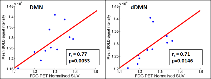 Simultaneous Trimodal MR-PET-EEG Imaging (Fig 2): Correlation plot between normalised SUV uptake of FDG PET and BOLD signal intensity in DMN (right side) and dDMN (left side). (Shah NJ, et. al., 2017)