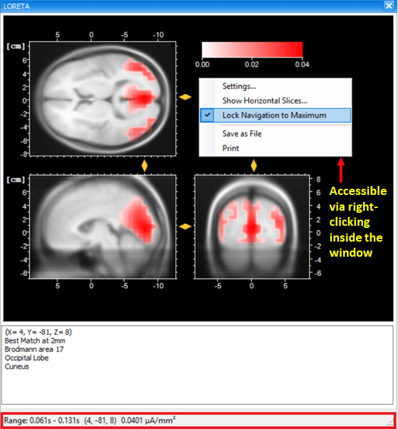 Fig. 5: Dockable window of the transient LORETA showing source activation map for the selected time-interval.