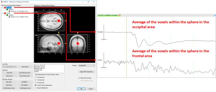 Fig. 7: Separate ROIs for the different regions of the brain along with its corresponding source signal depicted in separate LORETA channels (Occipital and Frontal).