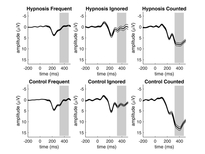 Fig. 3. P3b amplitudes for the three stimulus types of the Oddball task in the hypnosis and control condition pooled for all participants. The Oddball effect indicated by higher P3b amplitudes for to-be-counted stimuli is significantly reduced in the hypnosis condition as compared to the control condition. Thin lines indicate standard errors, grey areas indicate the P3b time window.