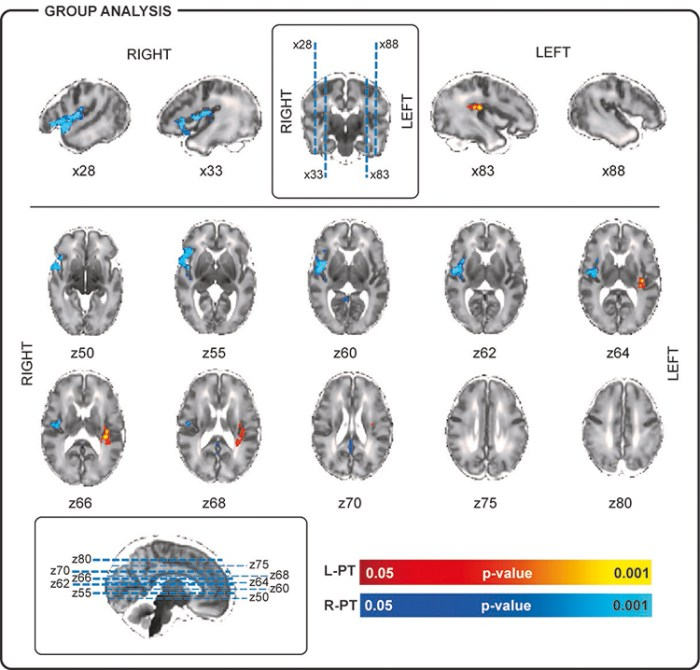 Figure 2. BOLD activity associated with the occurrence of left posterior-temporal (L-PT) and right posterior-temporal (R-PT) delta brushes.