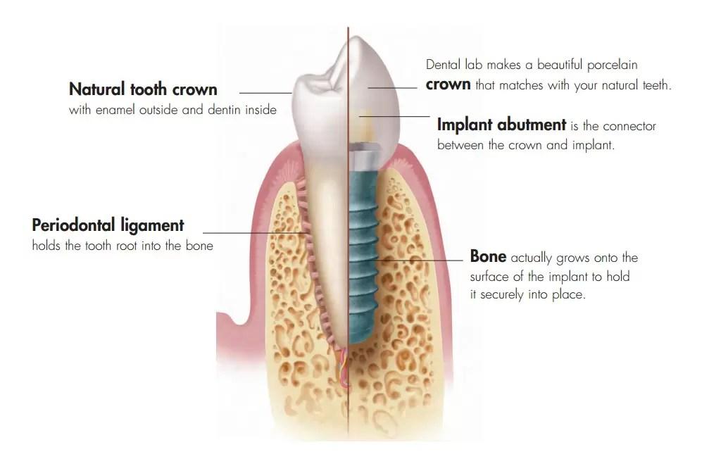 Dental Implants Palm Beach Gardens FL Replace Teeth