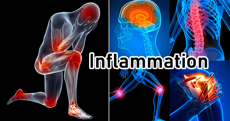 Back Pain and Inflammation