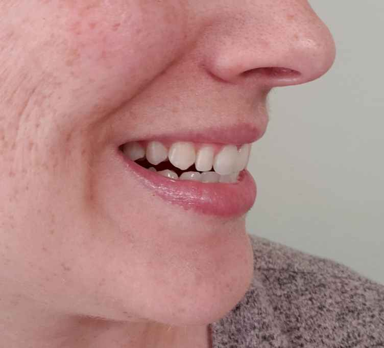 after at-home teeth whitening