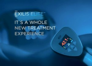 Exilis Elite Pretty Please Charlie review
