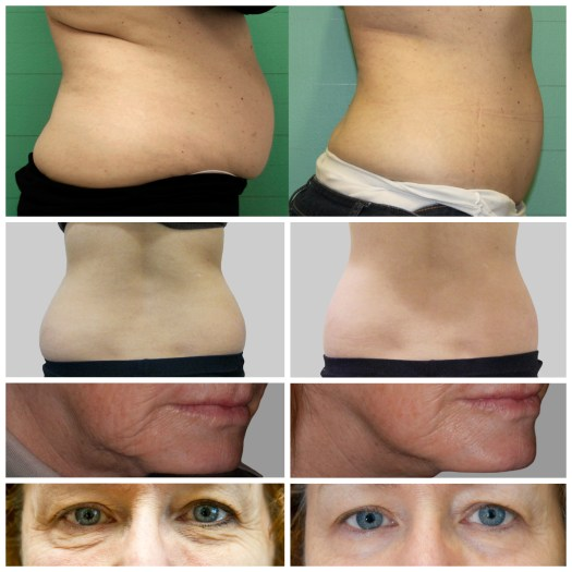 Pretty Please Charlie Exilis Elite review before & after