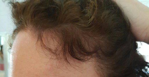 Trichotin Hair Regenesis Review & Hair Loss Update2