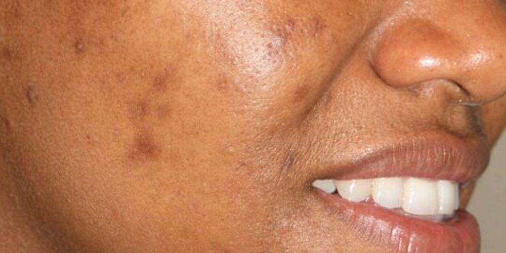 How to get rid of uneven skin tone