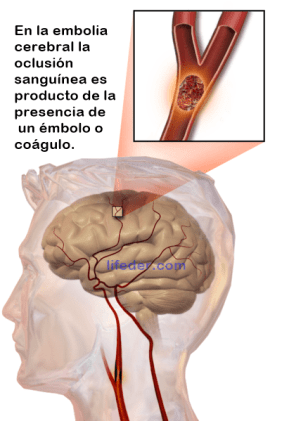 embolia2-min