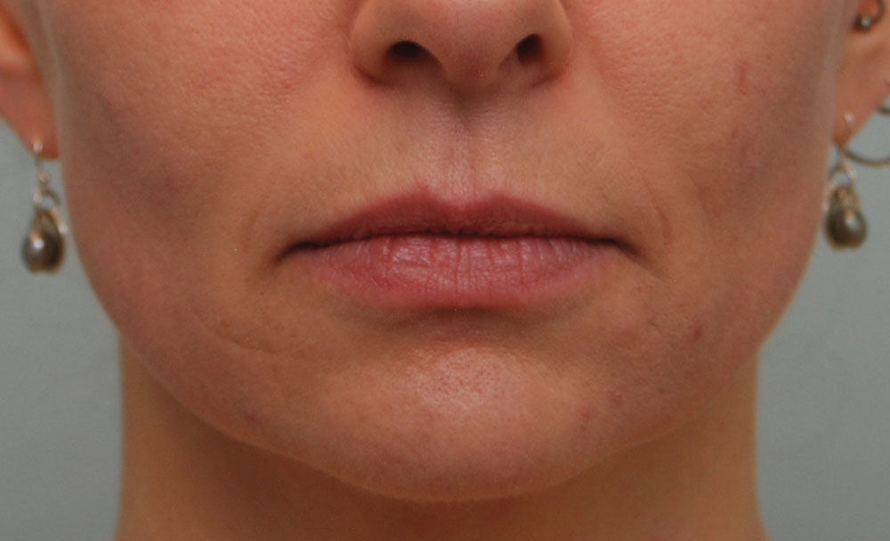Lip Injections Calgary Cost | Julakutuhy co