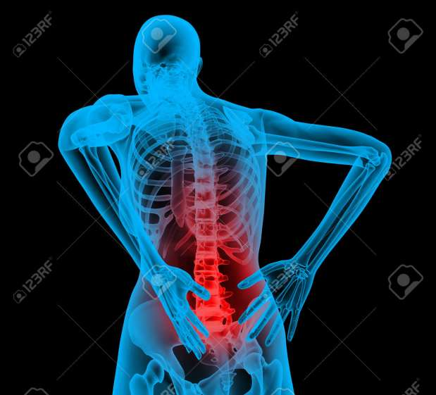 Human Backbone In X-ray View, Back Pain, Backache Stock Photo, Picture And Royalty Free Image. Image 12413724.