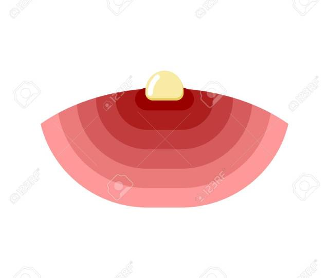 Acne Isolated Pimple With Pus On White Background Furuncle Stock Vector