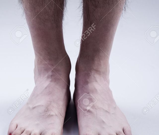 Mans Feet With Red Nail Polish And Hairy Legs On Bright Gray Background Stock Photo