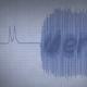 Cardio Reveal