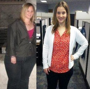 Alana Sims before and after weight loss surgery