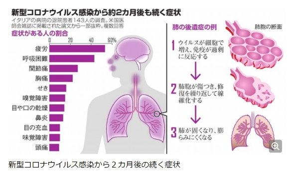https://www.asahi.com/articles/ASN7K41JSN7FULBJ005.html