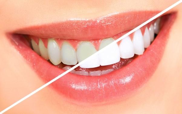 bocca denti bianchi