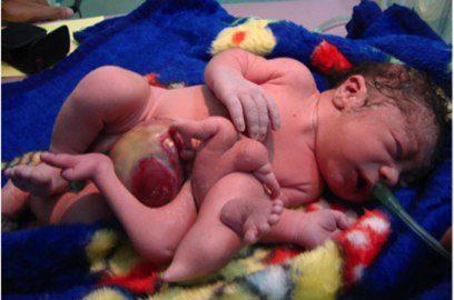 iraq-birth-defects