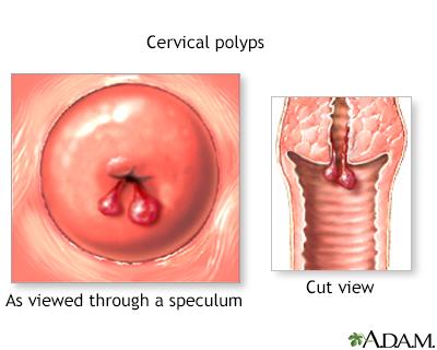 """""""cervix polyp"""" ile ilgili görsel sonucu"""